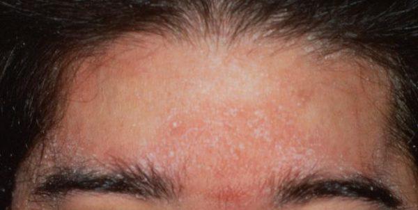 dermatita-seboreica